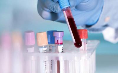 AI又当医生了,这次是通过血液识别癌症